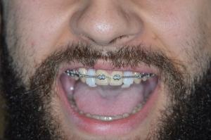 Αισθητικη Προσθιων Δοντιων